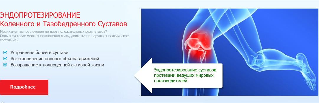 Центры эндопротезирования тазобедренного сустава украина грудино рёберные суставы их характеристика