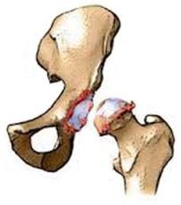 лечение коксартроза тазобедренного сустава украине